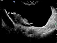 ovary-and-tube